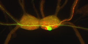 Buccal ganglia of the tropical pond snail Biomphalaria glabrata with fluorescent stain-filled motor neurons. The motor neurons are involved in the rasping motion of the snail's feeding organ, the radula.